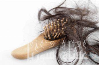 5 نصائح فعالة لعلاج مشكلة تساقط الشعر.. تعرفي عليها